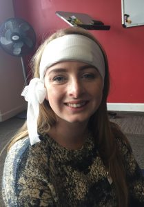 jess-with-head-bandage